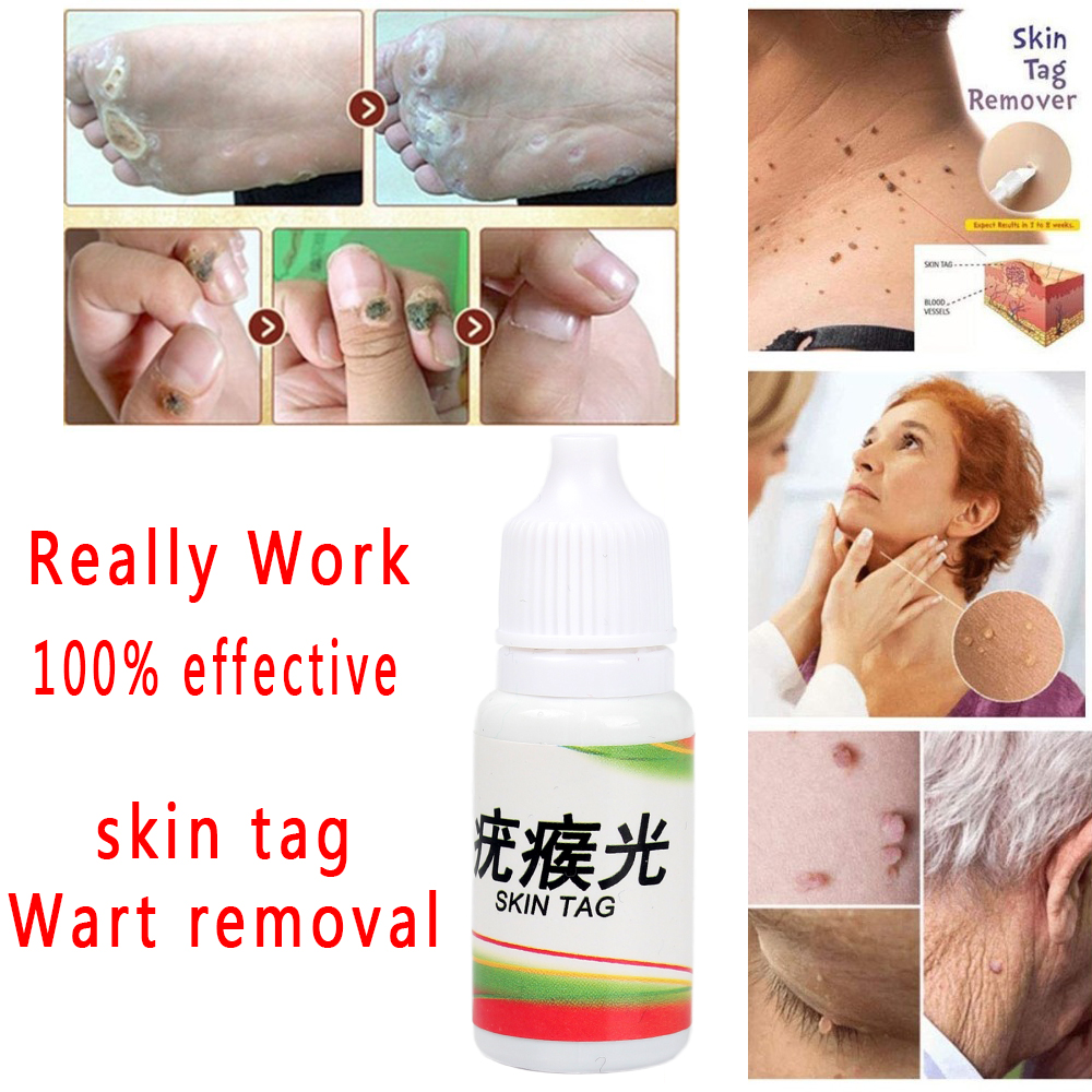 Really Work Body Warts Corn Mole Genital Wart Treatment Cream Skin Tag Remover Foot Corn Removal Plantar Genital Warts Ointment(China)