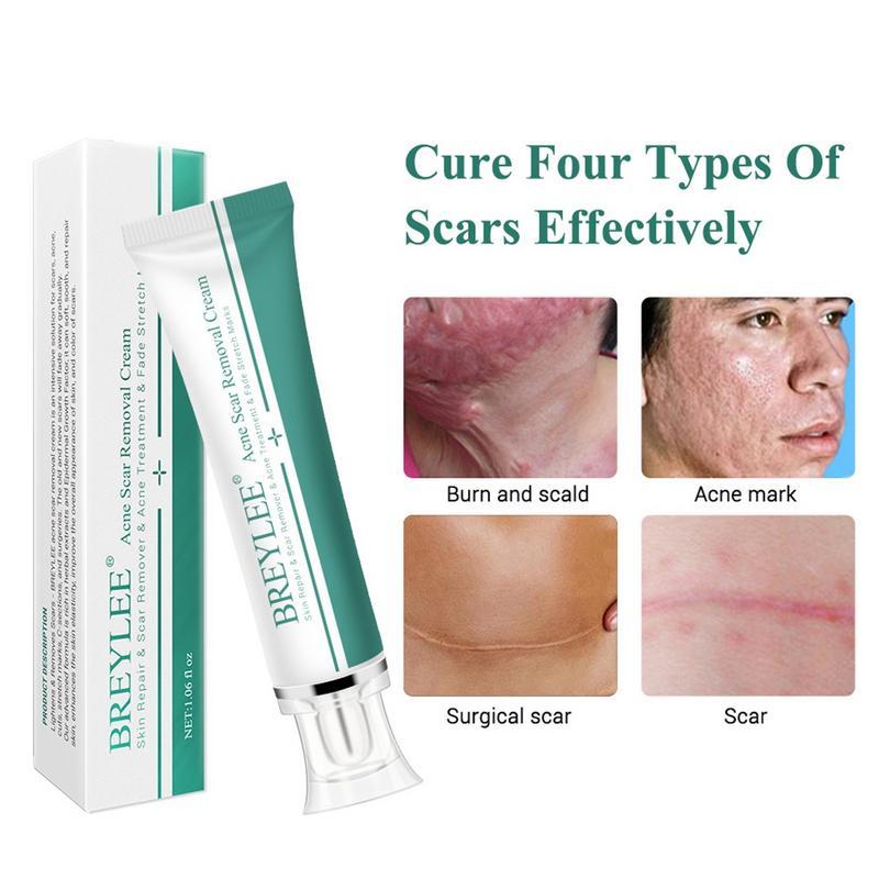 Breylee Brand Removal Scar Cream Face Pimples Scar Stretch Marks Removal Acne Treatment Whitening Moisturizing Cream 20