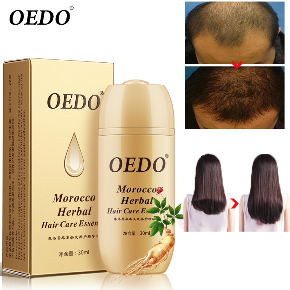 OEDO Morocco Herbal Ginseng Hair Care Essence Treatment For Men And Women Hair Loss Fast Powerful Hair Growth Serum Repair root