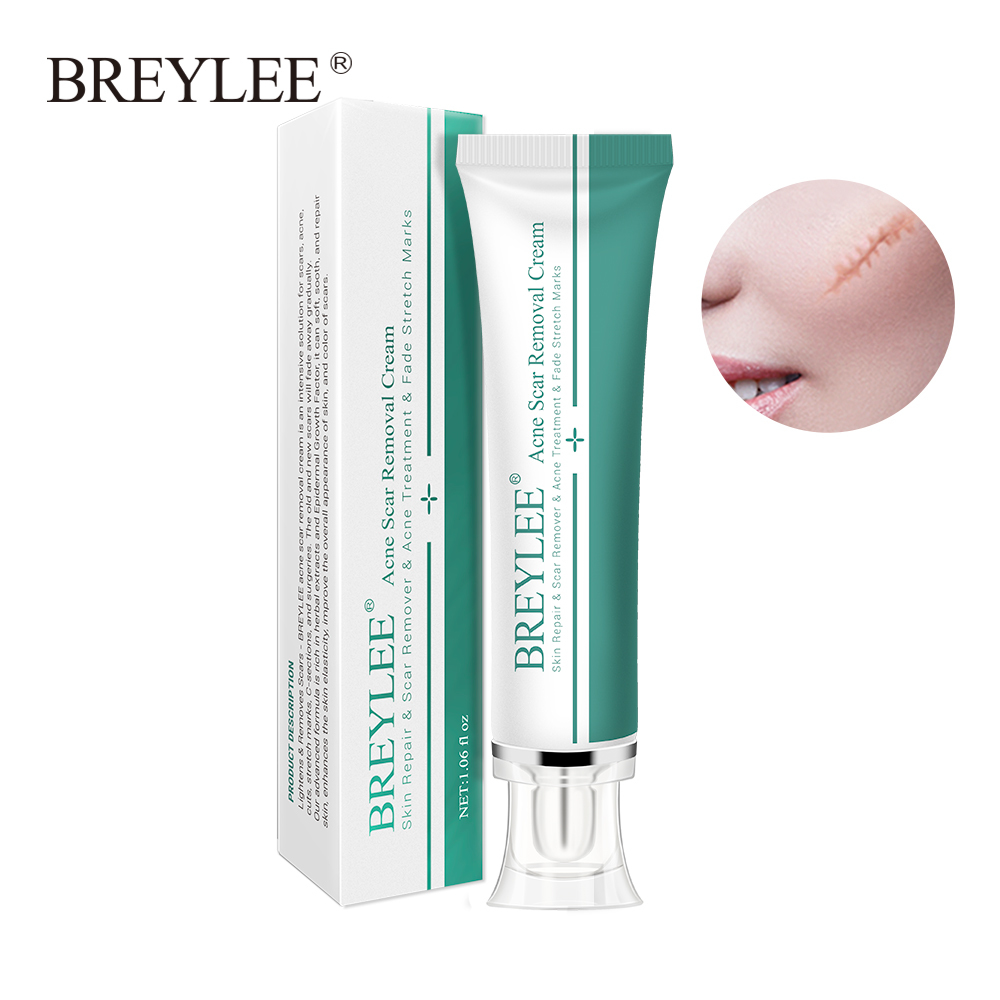 BREYLEE Acne Scar Removal Cream Face Cream Skin Repair Skin Care Scar Acne Treatment Remove Stretch Marks Whitening Cream 30g