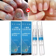 Repair Liquid Remove fungus Ringworm Nails Biology foot feet hand fungal nail treatment care schimmel nagel behandeling cuticole цена и фото