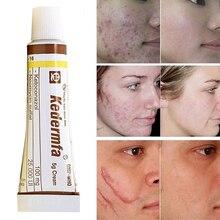 Ungüento de aceite de serpiente vietnamita profesional, crema para eliminar cicatrices, tratamiento de acné, cuidado de la piel de la mano, crema de serpiente Natural 5g TSLM1