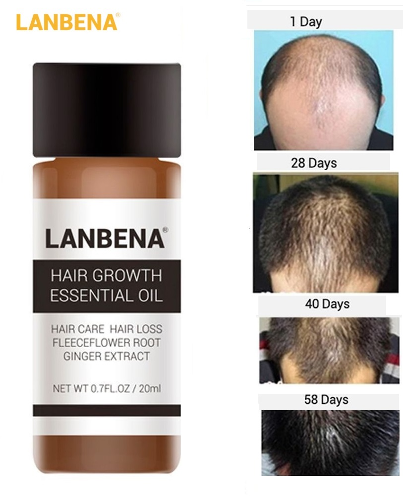 LanBeNA 1 Bottle 20 Ml Fast Hair Growth Powerful Essential Oil Treatment Anti Hair Loss Natural Hair Care Liquid for Men/ Women