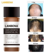 LanBeNA 20 Ml Fast Hair Growth Powerful Essential Oil Treatment Anti Hair Loss Natural Hair Care Liquid for Men/ Women TSLM1