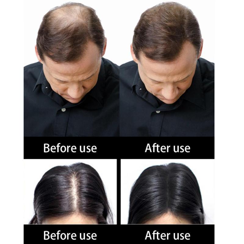 Analytisch Salon Keratin Haar Gebäude Fasern Haarausfall Behandlung Pflege Verbergen Dünner Werdendes Haar Faser Haar Care Wachstum Produkte Dropship Profitieren Sie Klein
