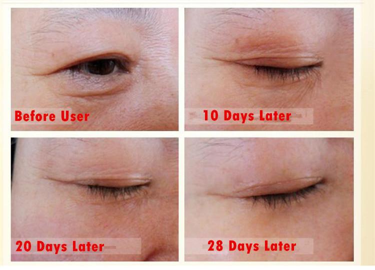уход за лицом крем botulinum клостридия жидкости vegneotox удалить finelines против старения морщин укрепляющий уход за кожей сыворотка 10мл*3