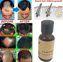 Hair Growth Ginger Oil Natural Plant Essence Faster Grow Beard Eyelashes Hair Tonic Shampoo Hair Loss Hair Care Serum