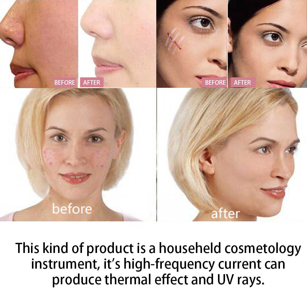 Ulepszony przyrząd do elektroterapii o wysokiej częstotliwości elektroterapia kij elektroterapia grzebień domowy kosmetologia urządzenie do pielęgnacji skóry