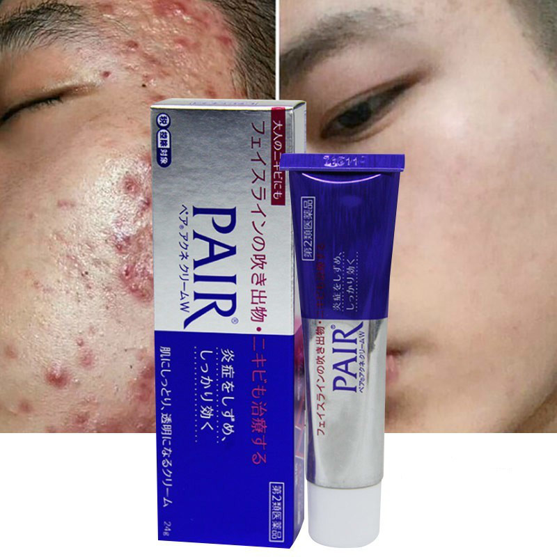 Best Top 10 Acne Medication Cream Ideas And Get Free Shipping A864
