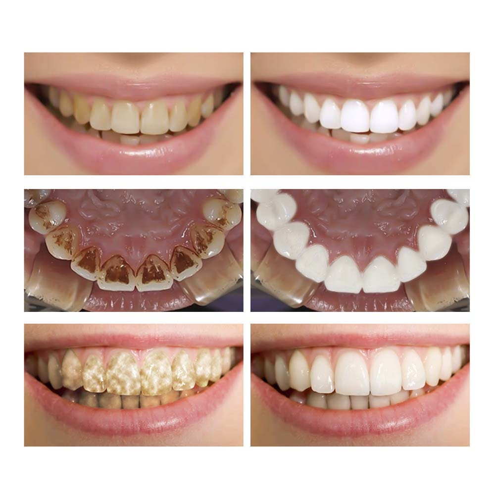 Buy 3 Get 1 Gift Lanbena Teeth Whitening Pen Removes Plaque Stains Oral Hygiene Tooth Gel 3pcs teeth Whitening Essence Powder in Teeth Whitening from Beauty Health