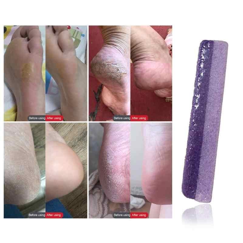 1 pc Pietra Pomice Piedi Pelle Dura di Rimozione Del Callo Del Piede Liscia Bagno Pulito Scrubber Liscio Cura Del Piede Strumento di Pedicure