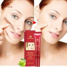 Acne Scar Removal Cream Skin Repair Face Cream Acne Spots Acne Treatment Blackhead Whitening Cream Anti Scar Stretch Marks 15g