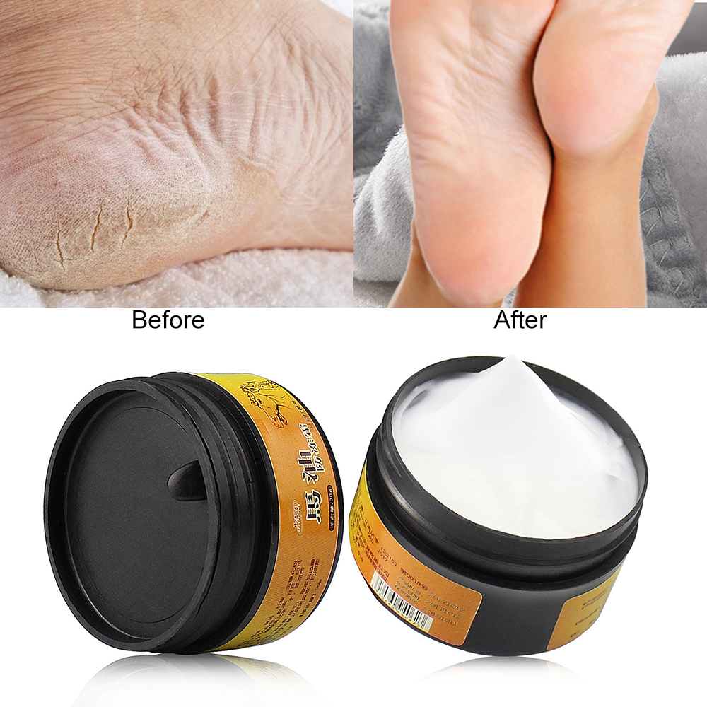 1 Box Natural Horse Oil Feet Peeling Cream Care Beriberi Cream For Athlete's Feet Itch Blisters Anti-chapping Foot Care TSLM2
