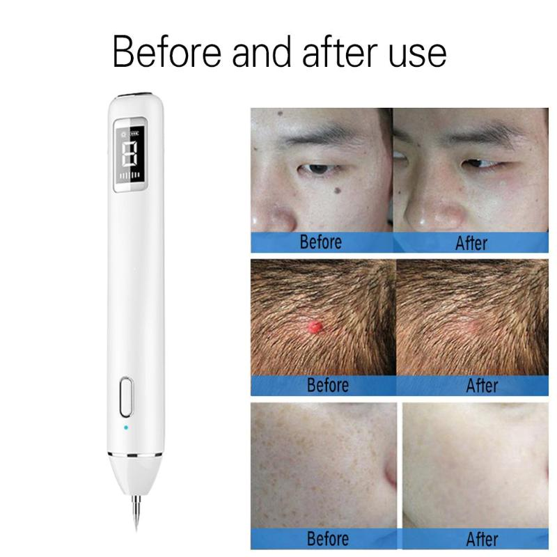 8 level LCD Laser Plasma Pen Freckle Dark Spot Tattoo Removal Laser Mole Wart Removal Face Skin Care Machine