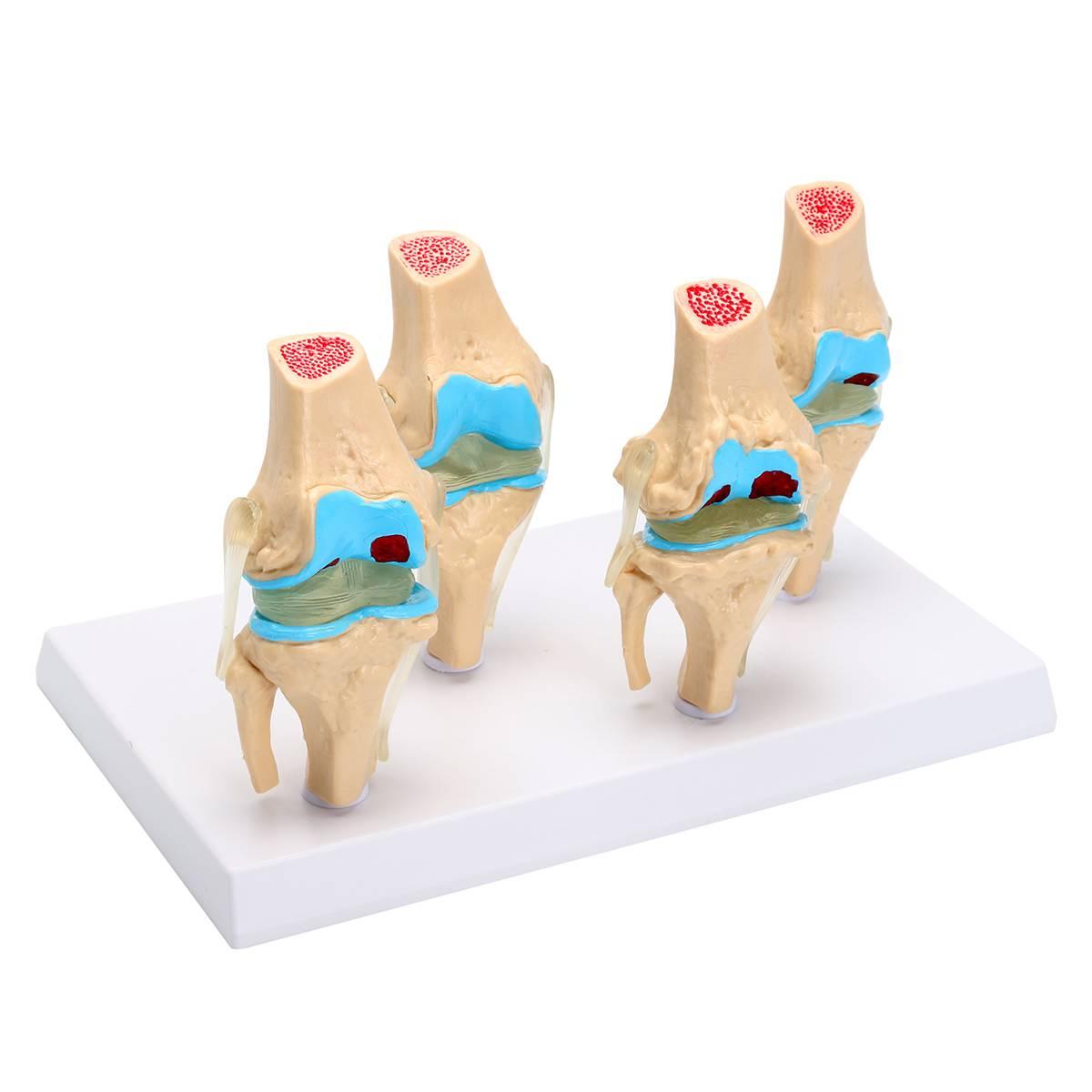 1 Set Detachable Human Skeleton Knee Joint Anatomy Model Osteoporosis Morbid State Models Medical Science Teaching Supplies