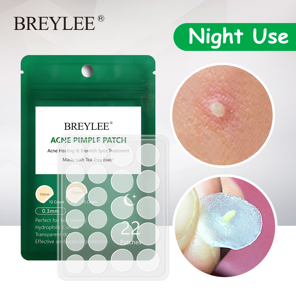 BREYLEE Acne Pimple Patch Acne Treatment Stickers Pimple Remover Tool Blemish Spot Skin Care Facial Mask Waterproof Night Use image