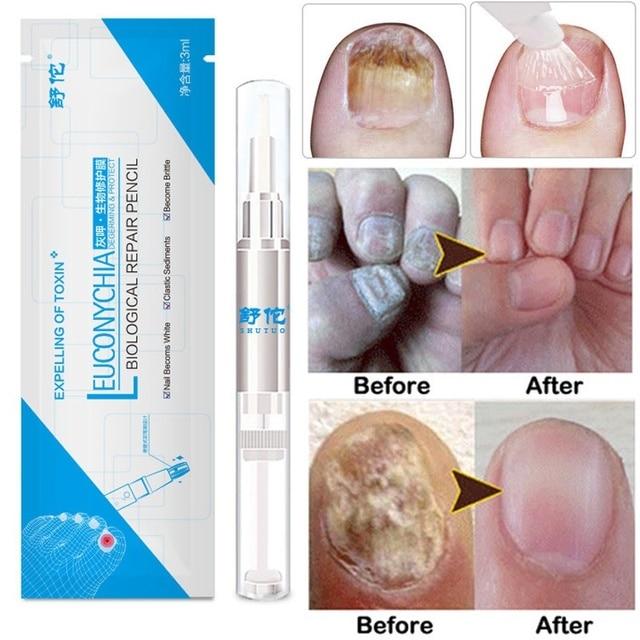 3 ML tratamiento de hongos de uñas pluma de aceite de uñas Anti infección de uñas micóticas removedor de cutículas líquido para crecimiento de uñas cuidado de la piel TSLM2