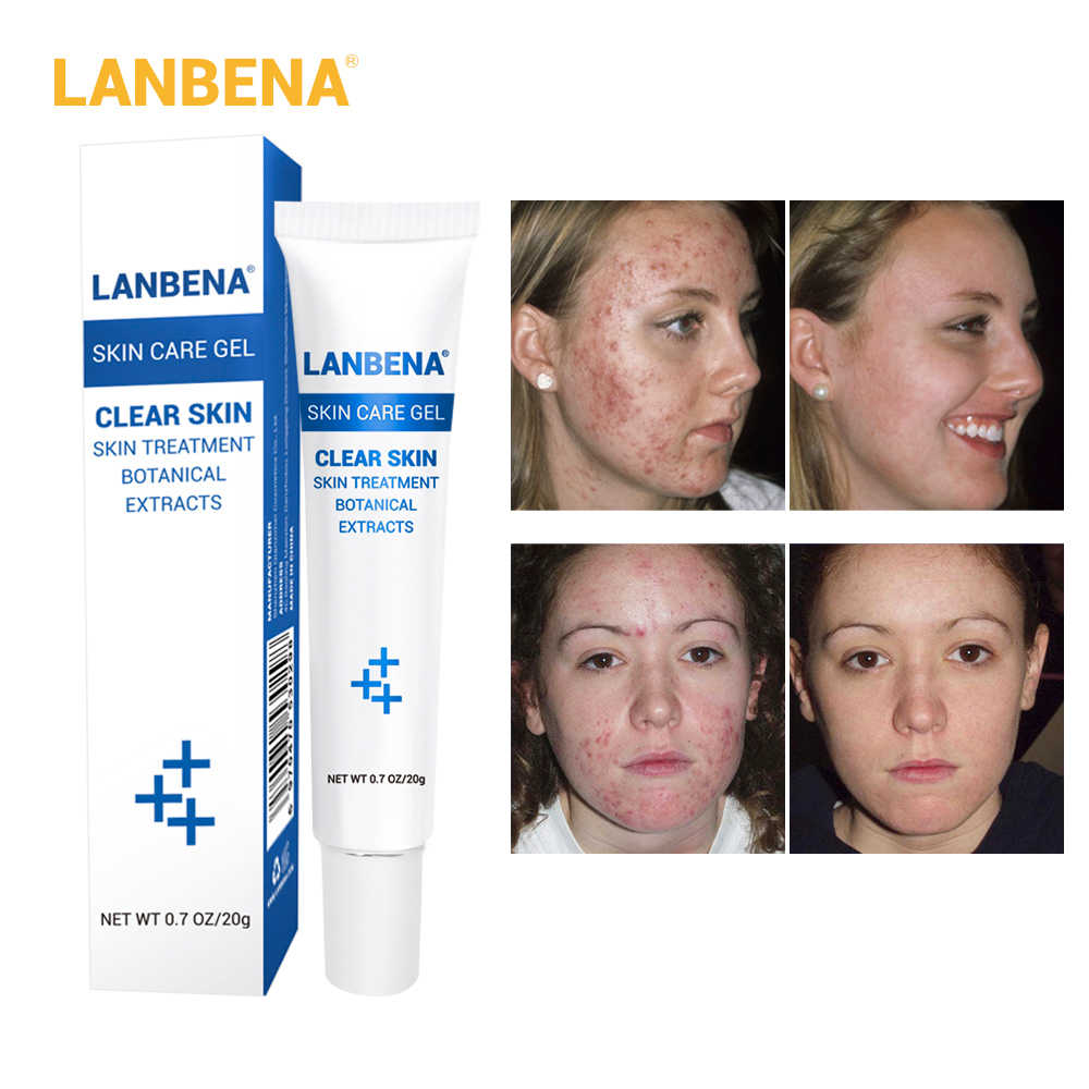 Lanbena Removing Scar Ointment Skin Care Gel Acne Removal Controller Face Acne Cream Scar Removing Skin Care Gel Product Aliexpress