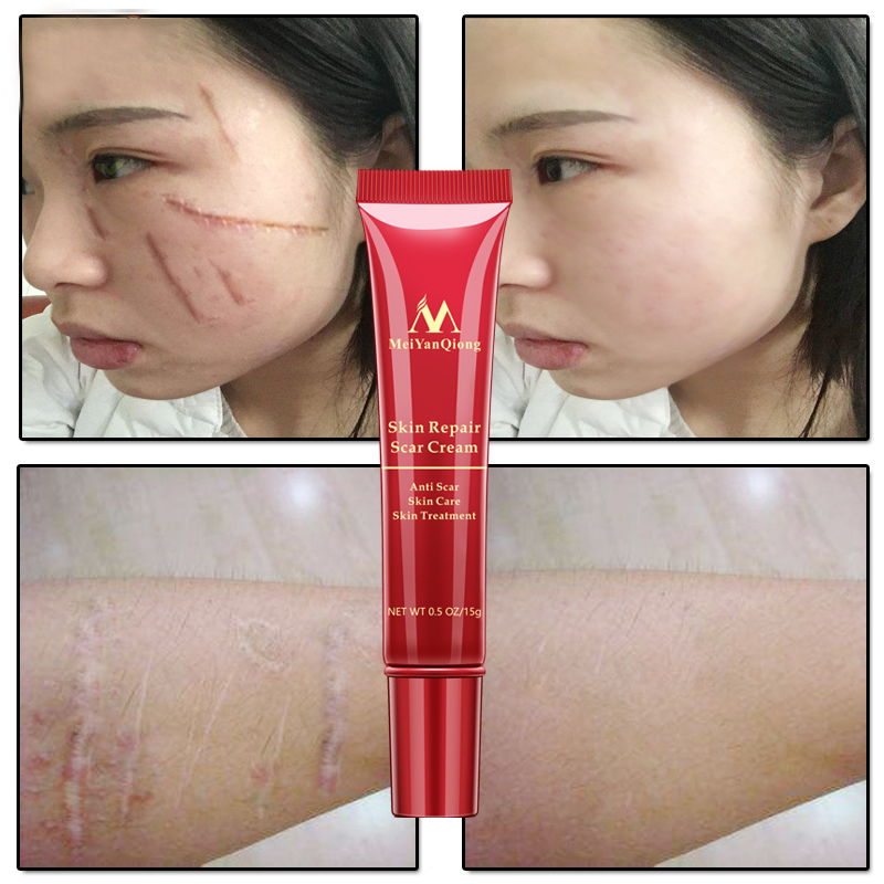 Scar Acne Removal Cream Skin Repair Face Cream Acne Spots Acne Treatment Blackhead Whitening Cream Anti Scar Stretch Marks 15ml
