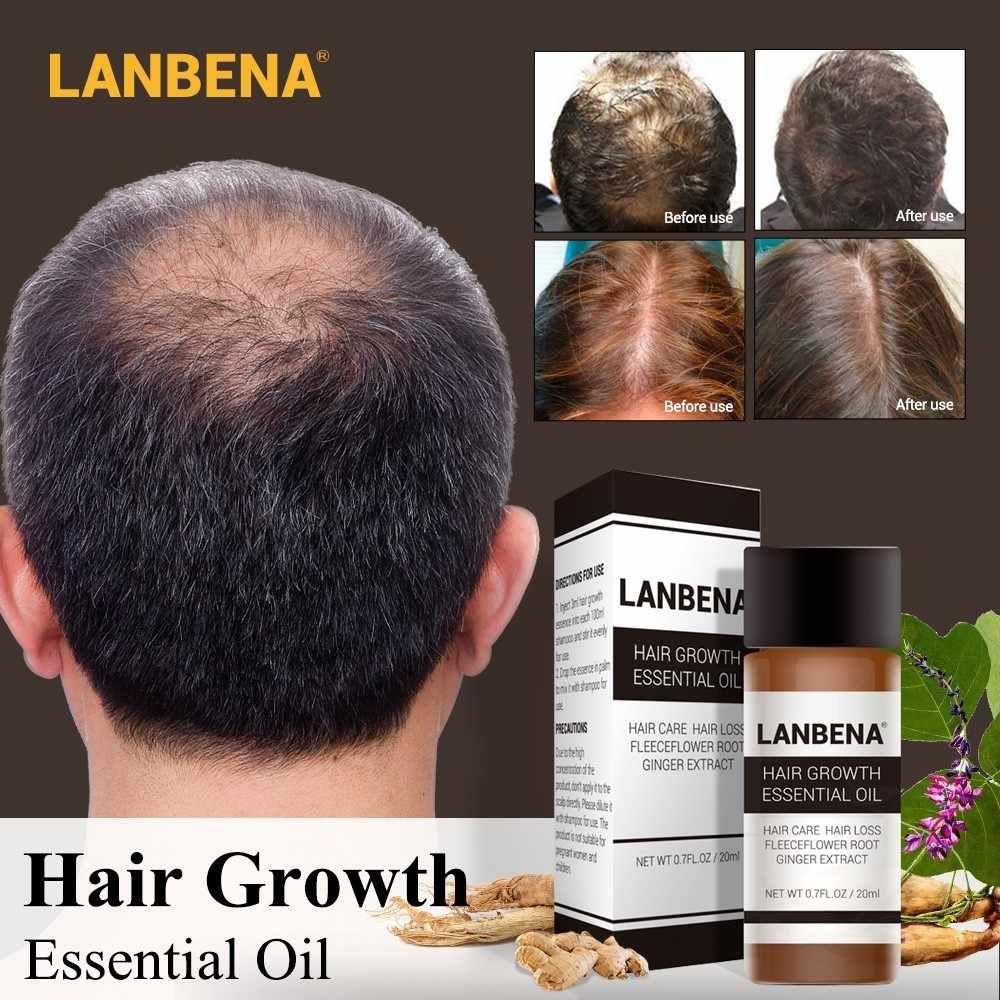 LANBENA Fast Powerful Hair Growth Essence Products Essential Oil Liquid Treatment Preventing Hair Loss Hair Care Andrea 20ml