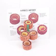 4 fase di Sezione Trasversale Umani Arteria Anatomico Modello Occlusione Vascolare Medico Kit di Apprendimento Insegnamento Risorse