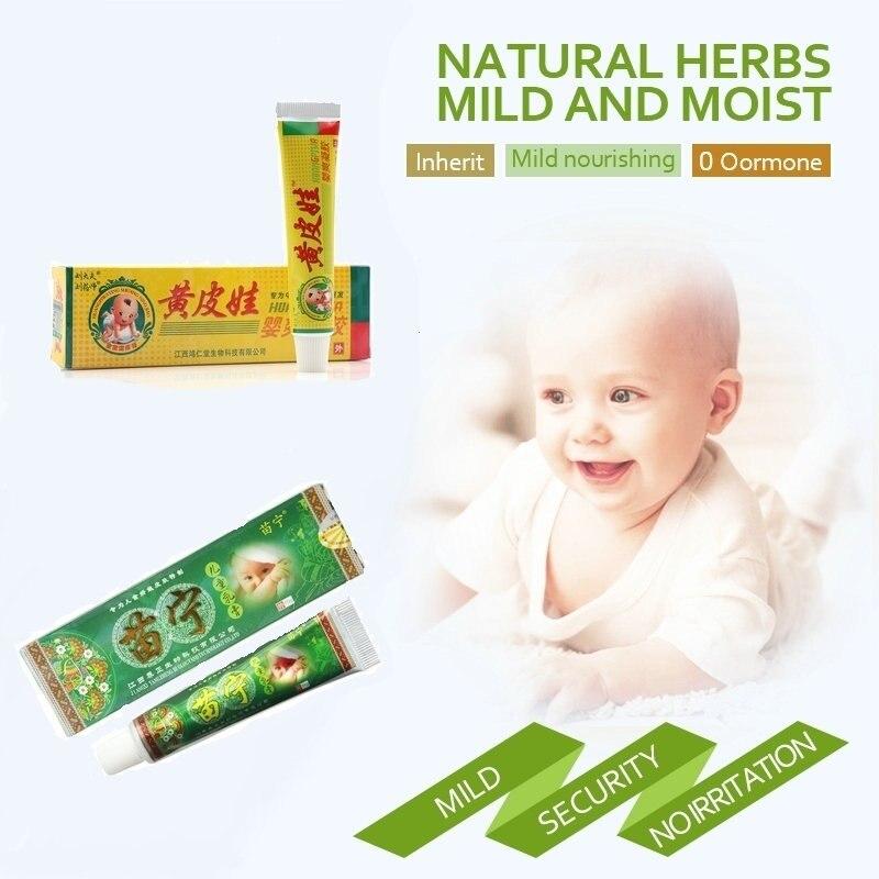 No Retail Box Sale! 3 PCS Baby Psoriasis Cream Dermatitis Eczema Treatment  Baby Eczema Cream Nappy Cream Skin Cream For Kids