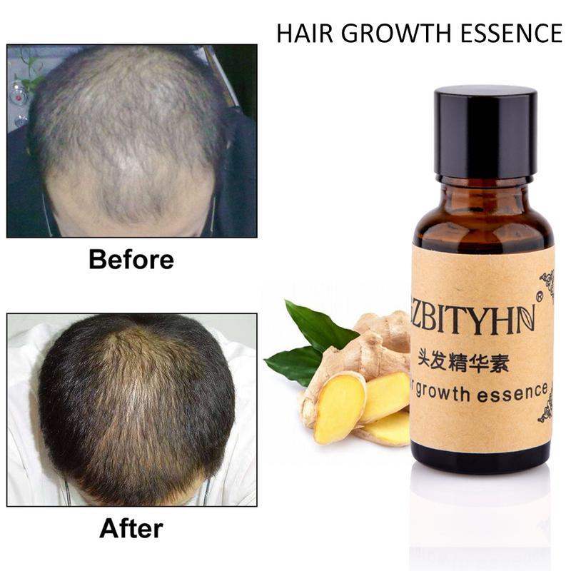 20ml Hair Care Hair Growth Essential Oil Essence Original Hair Loss Liquid Health Dense Anti-Alopecia Nourishing Moisturizing