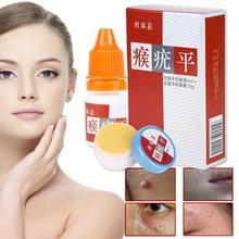 Body Warts Treatment Cream 5ml+10g Skin Tag Remover Foot Corn Removal Plantar Genital Warts Foot Care Cream L35