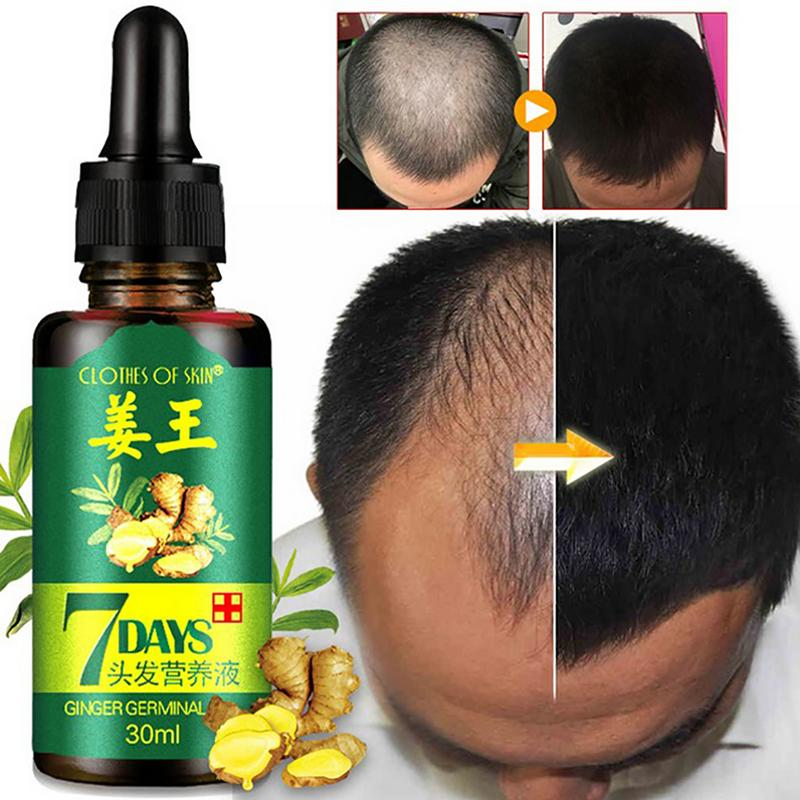Hair Growth 30ml Women Men Hair Care Growth Essence Liquid Fast Restoration Hair Natural Hair Loss Treatment Nutrition Tool