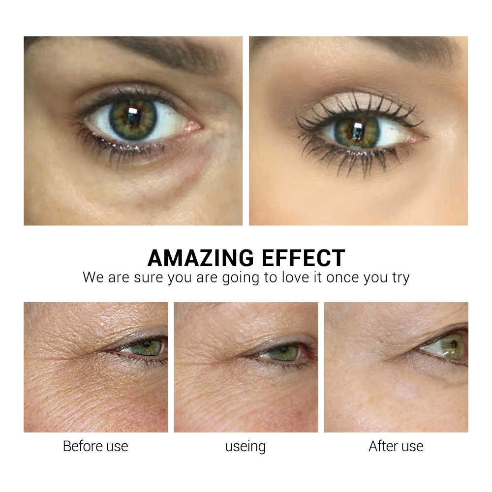 Lanbena Hyaluronic Acid Retinol Mặt Nạ Mắt Miếng Dán Mắt Serum Làm Giảm Vết Đen Sửa Chữa Túi Mắt Dòng Nuôi Dưỡng Săn Chắc Da