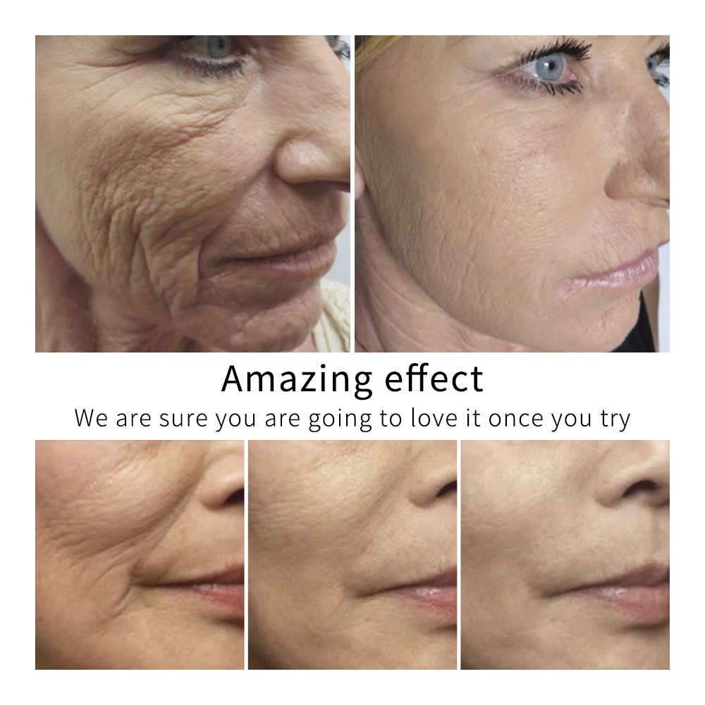 นาฬิกา LANBENA 24k Gold Ampoule เซรั่ม Essence Whitening Anti Wrinkle Anti Aging ริ้วรอย Firming Face Cream Moisturizing Skin Care