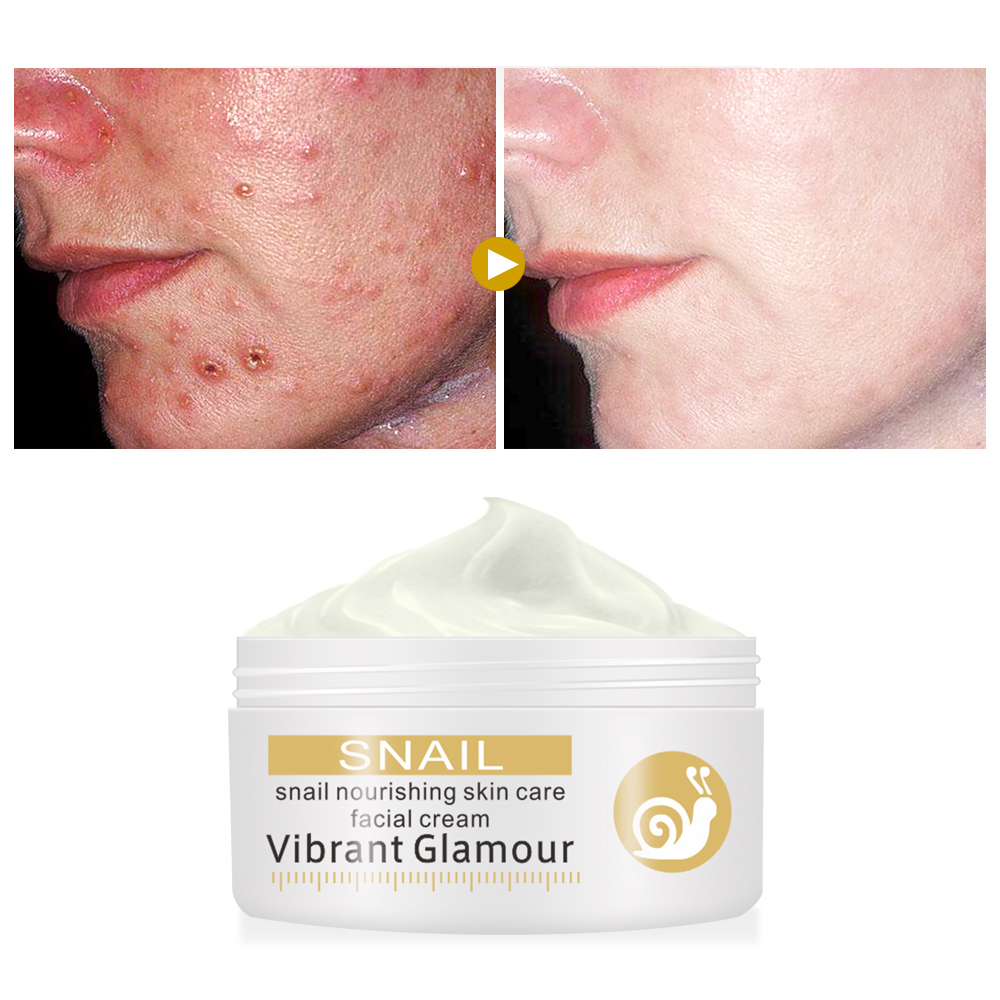 VIBRANT GLAMOUR Repairs Snail Face Cream Remove Wrinkles Acnes Cream Whitening Pigment Spots Brighten Skin Wrinkle Control Oil
