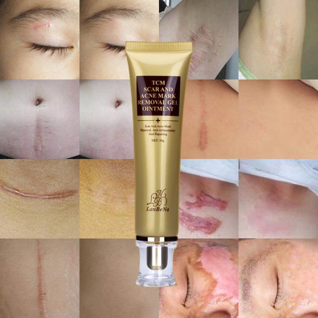 LANBENA Acne Scar Remove Cream Acne Treatment Whitening Serum Anti Acne  Repair Stretch Marks  Skin Shrink Pores Face Care 2pcs
