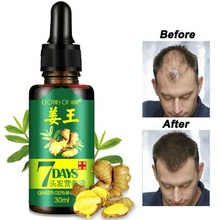 30ml Hair Growth Serum Essence for Women Men Anti Preventing Hair Loss Alopecia Liquid Damaged Hair Repair Growing Faster 40ml pack hair boost hair growth loss products anti bald alopecia hair loss remedies 100