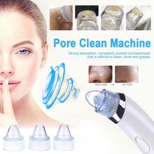 Pro Vacuum Pore Cleaner Blackhead Remover Electric Acne Clean Exfoliating Cleansing Comedo Suction Facial Beauty Machine цена и фото