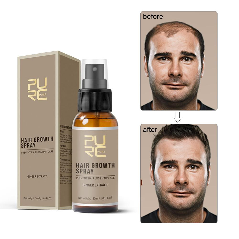 New PURC 30ml Hair Growth Spray Ginger Essence Spray Effective Extract Anti Hair Loss Nourish Roots For Men
