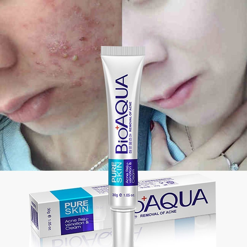 BIOAQUA Acne Face Cream Acne Remover Gel Anti Acne Cream On The Face And Anti Pimples Products For Acne Treatment Face Skin Care