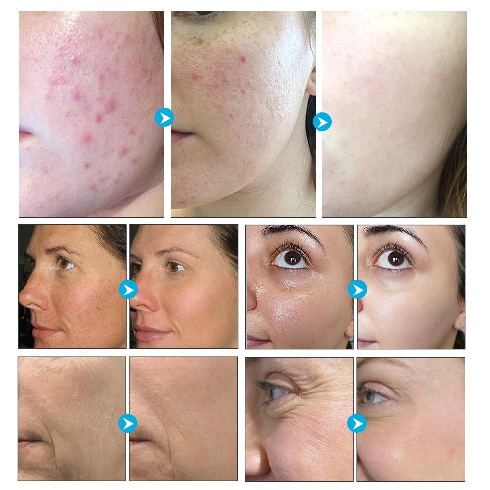 LANBENA 24K Gold Handmade Soap Hyaluronic Acid+Seaweed+Tea Tree  Facial Cleansing Moisturizing Anti-Aging Whitening Face Care