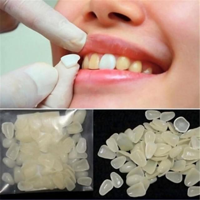 50pcs Temporary Dental Patch Temporary Dental Teeth Veneers Dentist Ultra-Thin Whitening Repair Kits Health Care