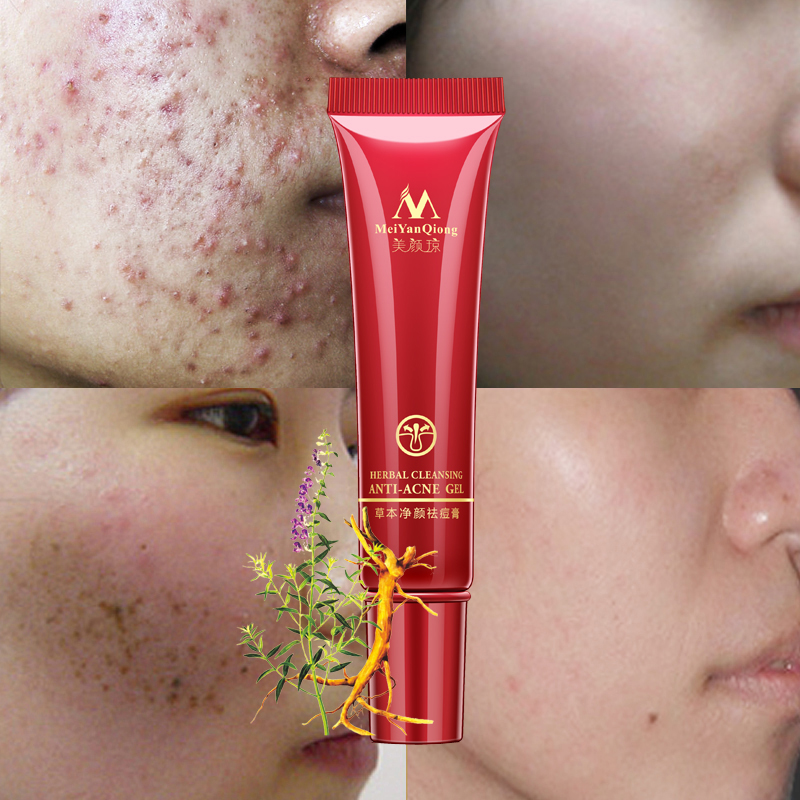 Herbal Face Anti Acne Remove Repair Treatment Cream Herbal Scar Removal Quickly Oily Skin Quickly Acne Spots Skin Care Face
