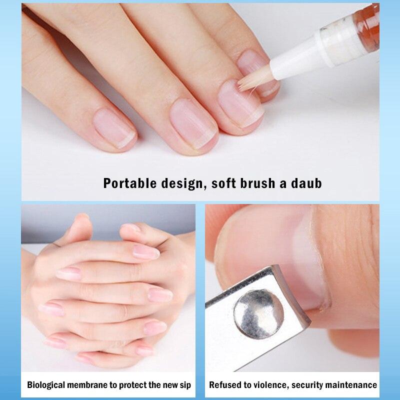 Nail Fungus Medicine - Infected Toe Treatment 2