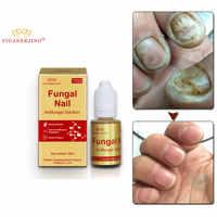 YIGANERJING Fungal Nail Care Antifungal Solution For Paronychia Toe Nail Fungus Treatment Nail Protection