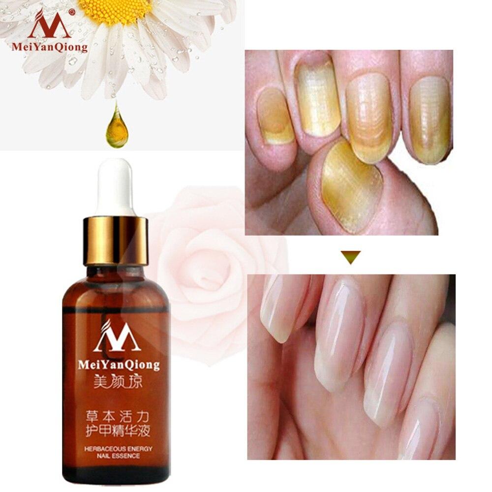 MeiYanQiong Fungal Nail Treatment Nourishing Brightening Essence Toe Fungus Removal Gel Anti Infection Paronychia Onychomycosis|Nail Treatments|   - AliExpress