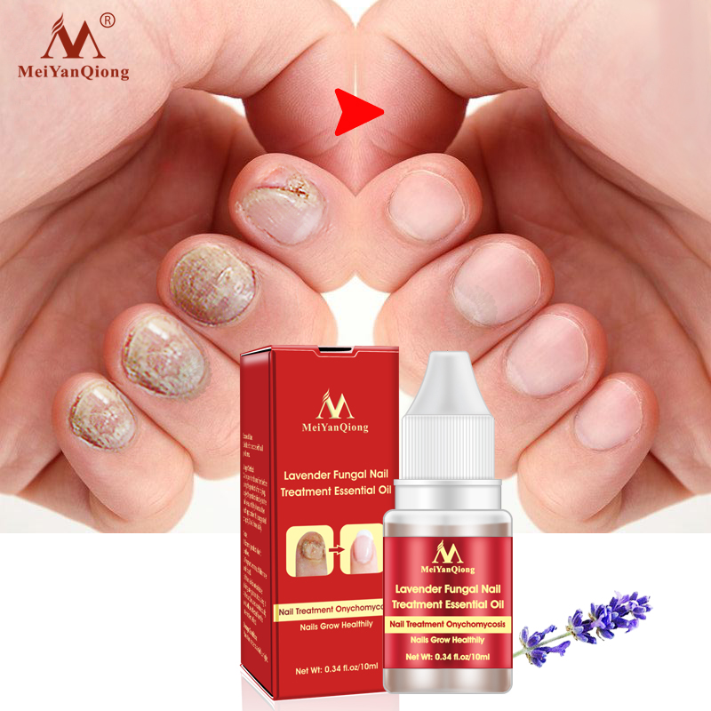 Lavender Fungal Nail Treatment Essential Oil Feet Care Whitening Toe Essence Removal Gel Anti Infection Paronychia Onychomycosis