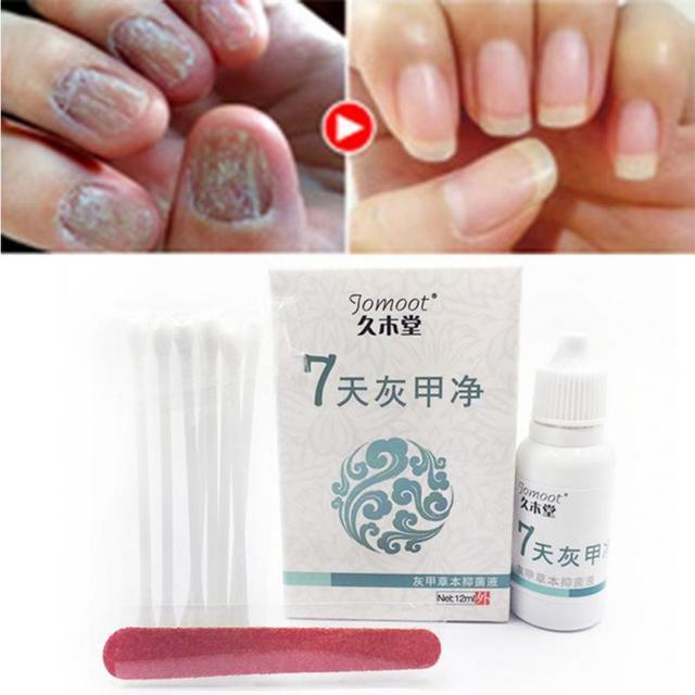 Toe Nail Fungus Treatment Anti Fungal Nail Infection Yellow Essence ...