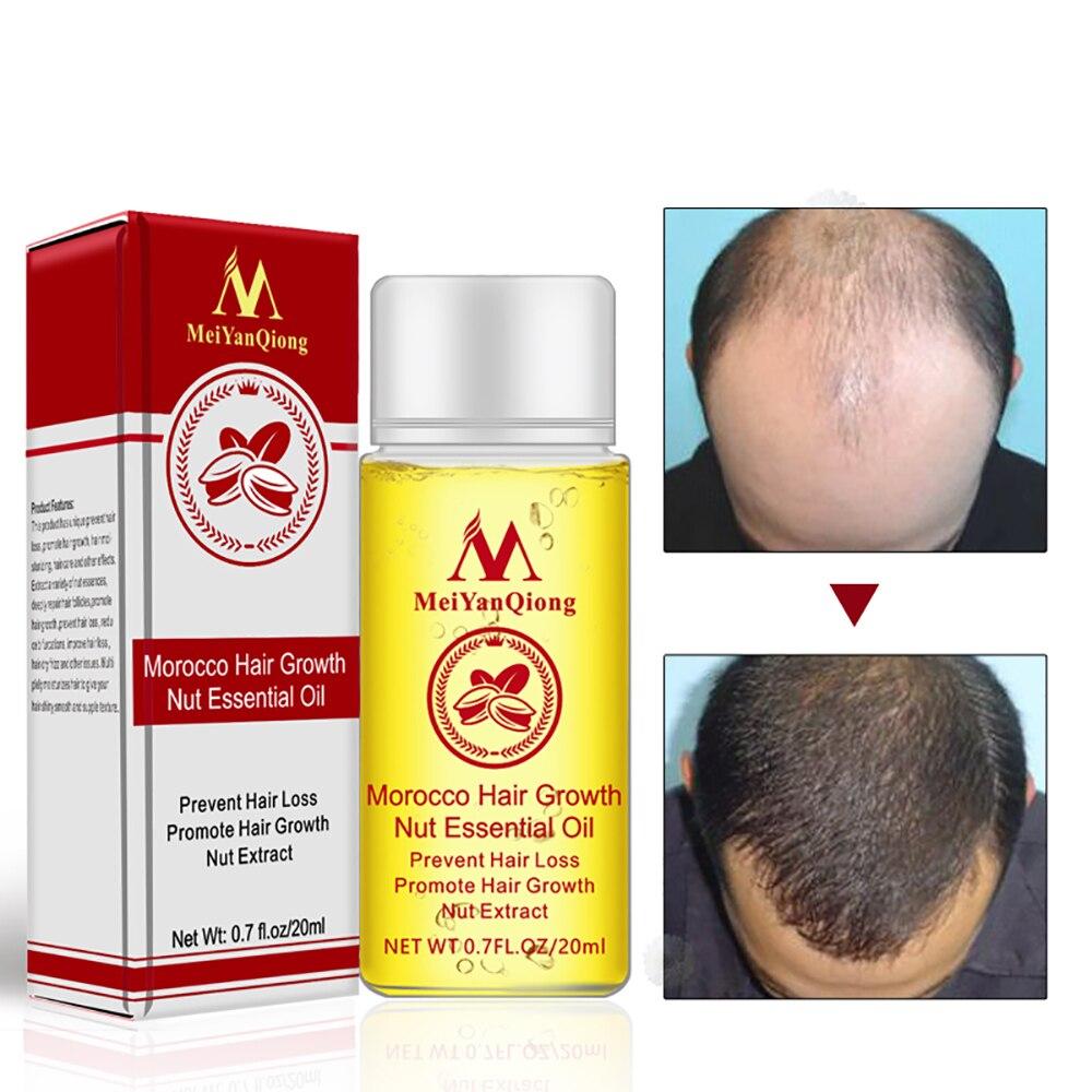 Hair Growth Essence Hair Loss Liquid Natural Pure Nut Essential Oils 20ML Promote Hair Gro