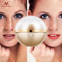 Freckle cream whitening face pigmentation removal melanin dark spot skin care lightening anti aging moisturizer melasma remover