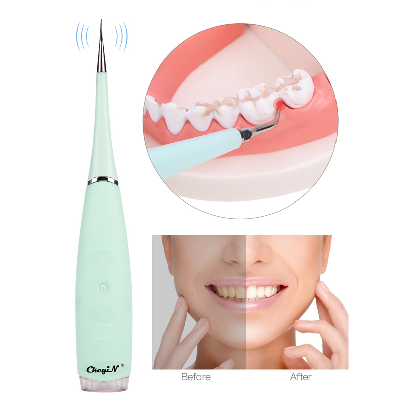 Electric Plaque Remover Alloy Steel Portable Toothpick Dental Tool Remove Dental Plaque Calculus Teeth Whitening Device
