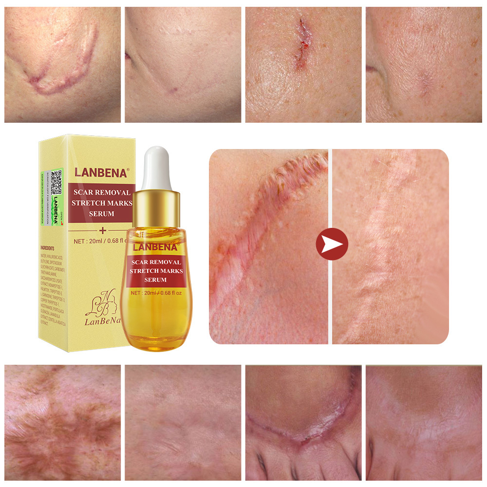 Lanbena Acne Scar Remove Serum Acne Treatment Cream Skin Repair Stretch Marks Anti Acne Shrink Pores Blackhead Whitening 2pcs