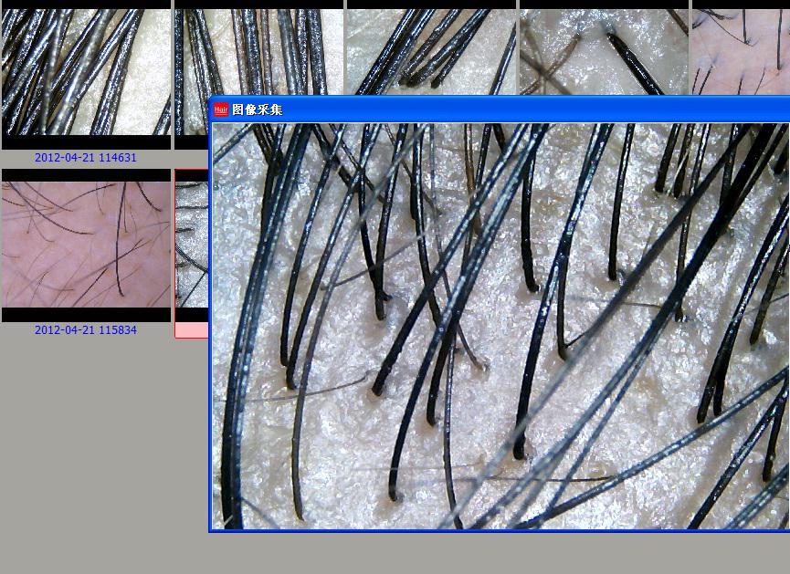 de Alta Resolução HairScope Cabelo Análise Analisador